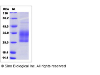 Human SPINT2 Protein (His Tag, ECD)