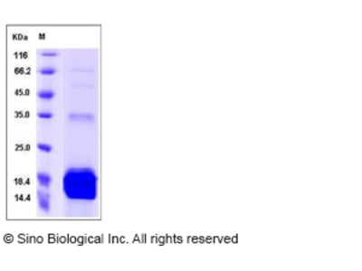 Mouse S100A9 / CAGB / p14 Protein (His Tag)