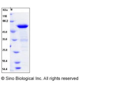 Human BIN1 / Amphiphysin-II Protein (His Tag)