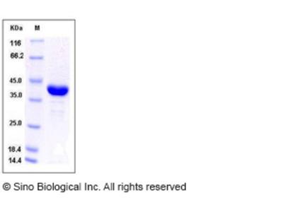 Human AKR1A1 Protein (His Tag)