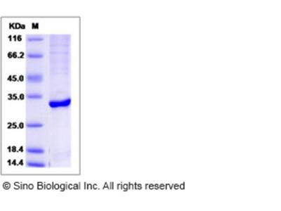 Human ABHD10 Protein (aa 53-306, His Tag)