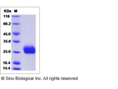 Human LRRC3B / LRP15 Protein (His Tag)
