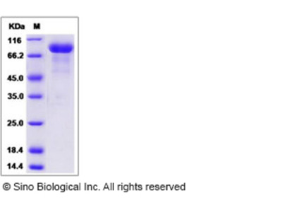 Human SLITRK6 Protein (His Tag)