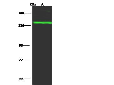 TTF2 Antibody, Rabbit PAb, Antigen Affinity Purified