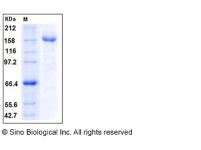 Human A2M / CPAMD5 / Alpha-2-macroglobulin Protein (His Tag)