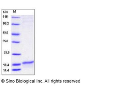 Human SLPI Protein (His Tag)