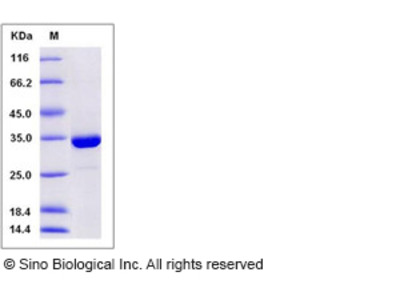 Human SULT1A3 Protein (His Tag)