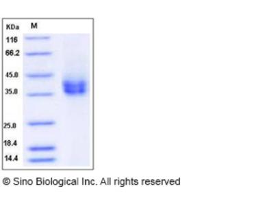 Rat CD89 / FCAR Protein (His Tag)