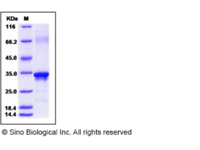 Human Beta-amyloid 39 / Beta-APP39 Protein (aa 672-710, His & GST Tag)
