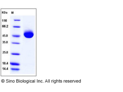 Human Prostatic Acid Phosphatase / ACPP Protein (His Tag)