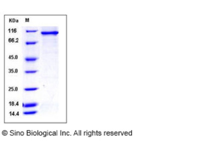 Human STK23 / MSSK1 / SRPK3 Protein (His & GST Tag)