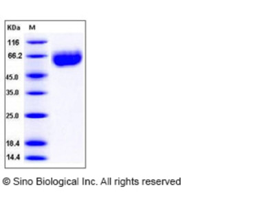 Mouse Axl Kinase Protein (His Tag)