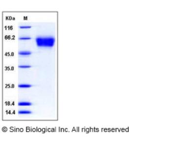 Human CD62L / L-Selectin / SELL Protein (His Tag)