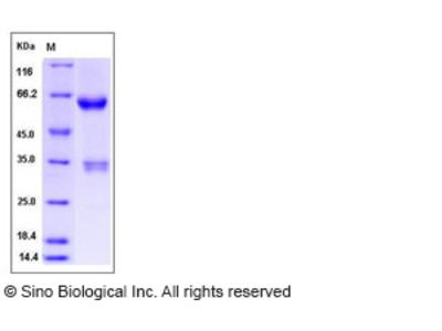Human JAM3 / JAM-C Protein (Fc Tag)