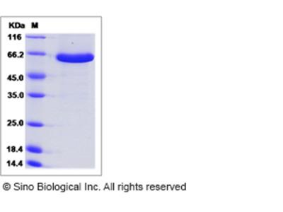 Mouse Semaphorin 3A / SEMA3A Protein (His Tag)