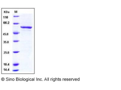 Human SMYD3 / ZMYND1 Protein (GST Tag)