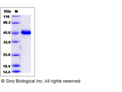 Mouse AKT3 Protein (aa 106-479)