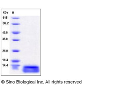 Human CCL15 / MIP-5 / MIP-1 delta Protein (aa 22-113, His Tag)