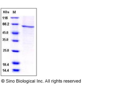 Human AKT1 / PKB / PKBα Protein (His Tag)