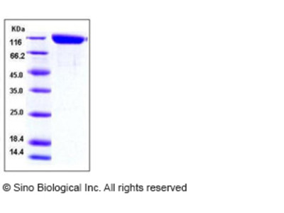 Mouse ANPEP / APN / CD13 Protein (His Tag)