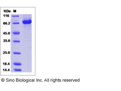 Human AKT2 / Protein kinase B / PKB beta Protein (His & GST Tag)