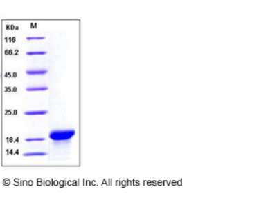 Human MOG Protein (aa 30-149, His Tag)