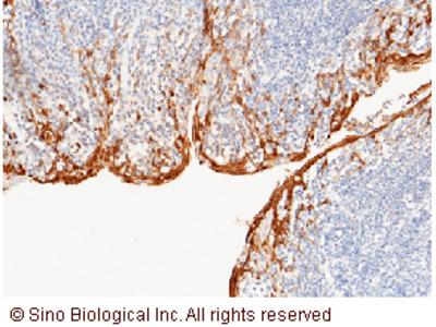 S100A8 / CAGA Antibody, Rabbit PAb, Antigen Affinity Purified
