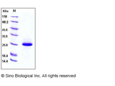 Mouse LCN2 / NGAL Protein (His Tag)