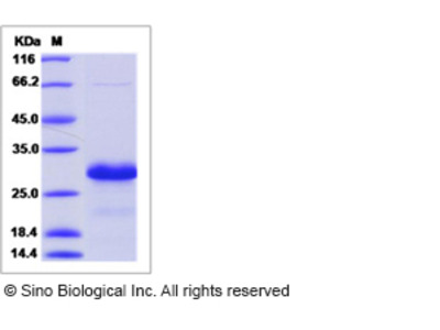 Mouse HN-1 / ARM2 Protein (His Tag)