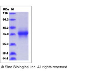 Human STC-1 / Stanniocalcin-1 Protein (His Tag)