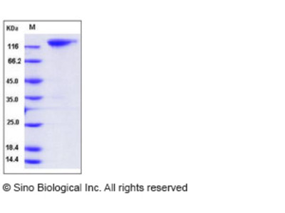 Mouse MERTK / Mer Protein (Fc Tag)