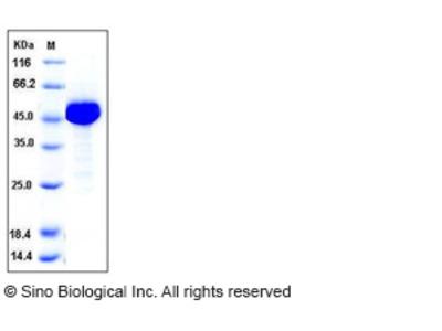 Human ALDH1 / ALDH1A1 / ALDC Protein (His Tag)