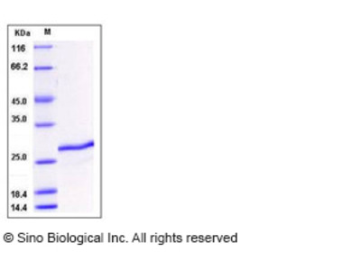 Mouse SDF2 / SDF-2 Protein (His Tag)