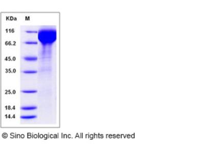 Human SIGLEC5 Protein (Fc Tag)