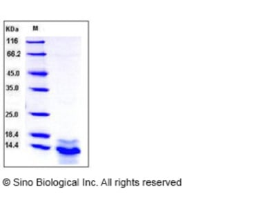 Human S100A14 / S114 Protein (His Tag)