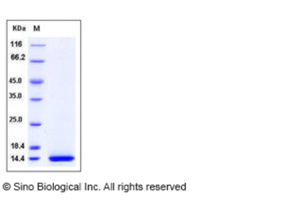 Human CCL11 Protein (His Tag)