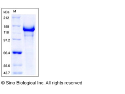 Human Semaphorin 5A / SEMA5A Protein (His Tag)