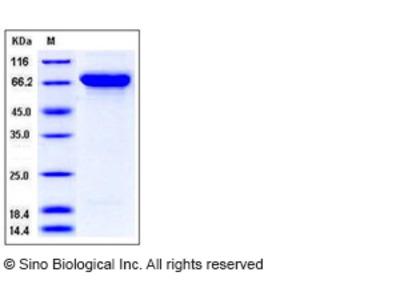Human Semaphorin 4A / SEMA4A / Semaphorin B Protein (His Tag)