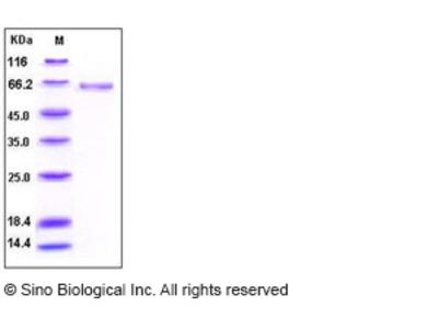 Human Alkaline Phosphatase / ALPL Protein (His Tag)
