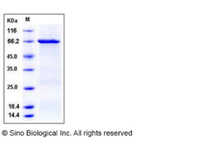 Human CSK / C-Src kinase Protein (GST Tag)