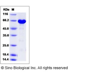 Human ERK3 / MAPK12 / P38-gamma Protein (His & GST Tag)