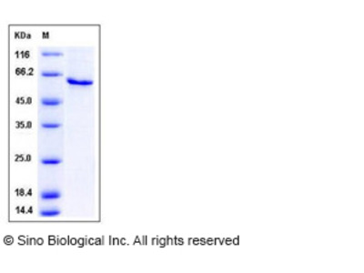 Mouse SerpinB12 Protein (His Tag)