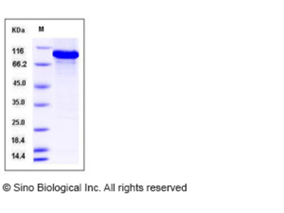 Human ATF2 Protein (His & GST Tag)