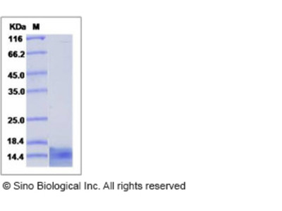 Human CCL4 / MIP1B Protein (His Tag)