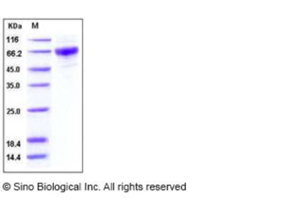 Human CSF2RA / GM-CSFR / CD116 Protein (His Tag)