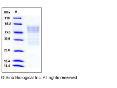 Mouse Syndecan-1 / SDC1 / CD138 Protein (His Tag)