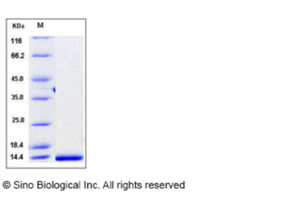 Human CCL14 / HCC-1 / HCC-3 Protein (aa 28-93, His Tag)