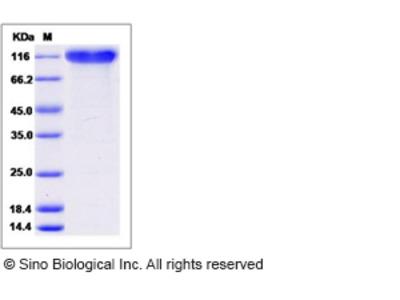 Mouse SELP / selectin P / P-selectin Protein (His Tag)