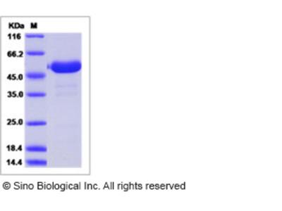 Human LRRC3B / LRP15 Protein (Fc Tag)