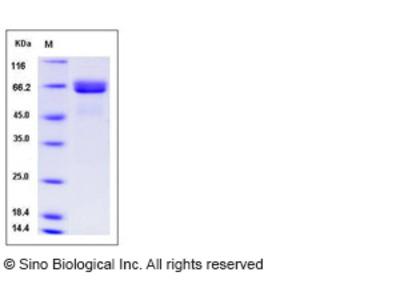 Human Alkaline Phosphatase / ALPI Protein (His Tag)